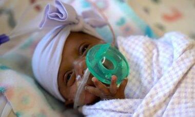 Saybie, o menor bebê do mundo / Foto: Hospital Sharp Mary Birch