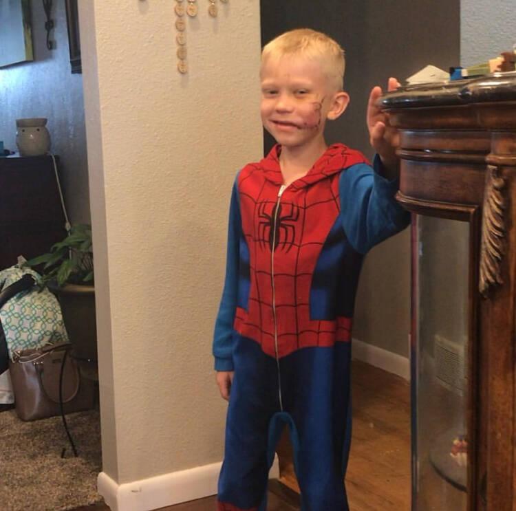 """Menino de seis anos salva irmã de ataque de cachorro e vira """"herói"""""""