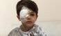 Menino queima o olho com álcool gel, e mãe faz alerta ao perigo